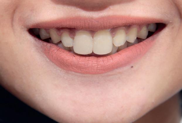 Mamfaat Daun Sirih Dan Garam Untuk Kesehatan Mulut Dan Gigi