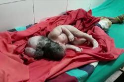 Seorang Bayi Lahir Dengan Kondisi 3 Kepala di India